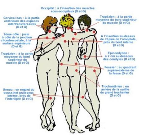 Fait mal le dos au cancer de lestomac de 4 degrés